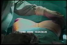 13163_10349_breast_surgery2.mov