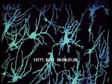 13171_6274_brain1.mov