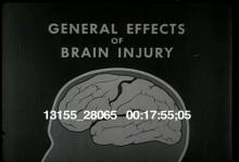 13155_28065_brain_behavior9.mov