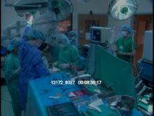 13172_8027_surgery4.mov